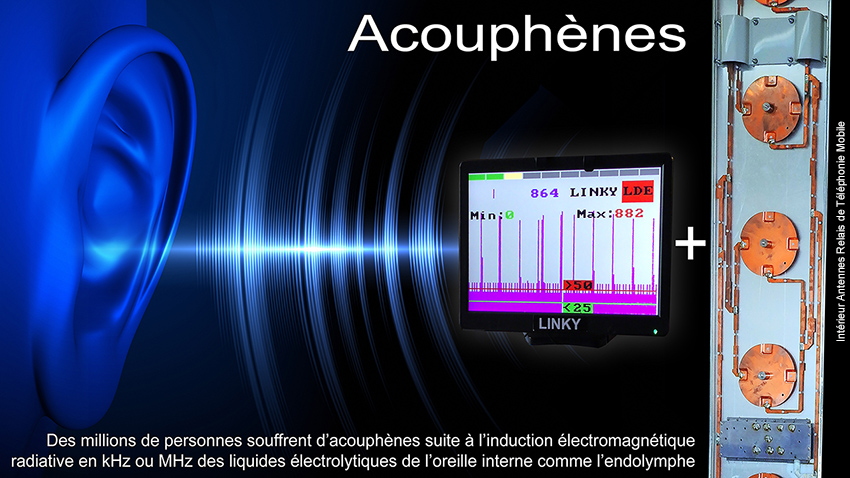 Acouphenes_mecanismes_induction_electromagnetique_850.jpg