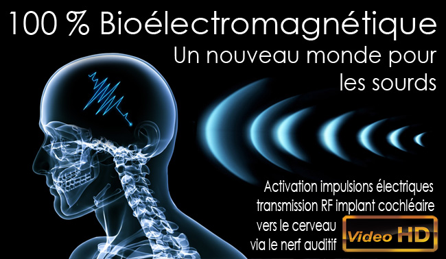 Homme_Bioelectromagnetique_Implant_cochleaire_ impulsion_oreille_interne_nerf_auditif_Flyer_News