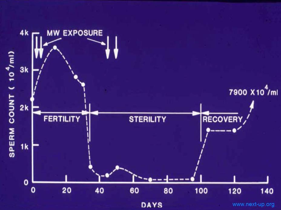 Le syndrome des micro ondes - Fausse couche symptome ...