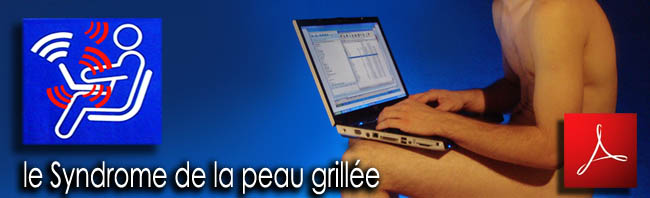Le_Syndrome_de_la_peau_grillee_news