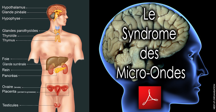 Le_Syndrome_des_micro_ondes_version_03_2010