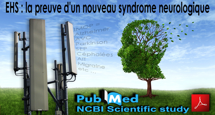 Radiation_CEM_Syndrome_Neurologique_NCBI_Etude_Scientifique_750