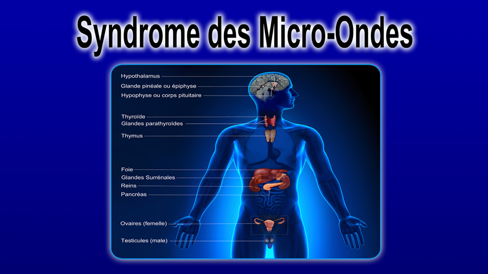 Syndrome_Micro_ondes_recto_News_950.jpg